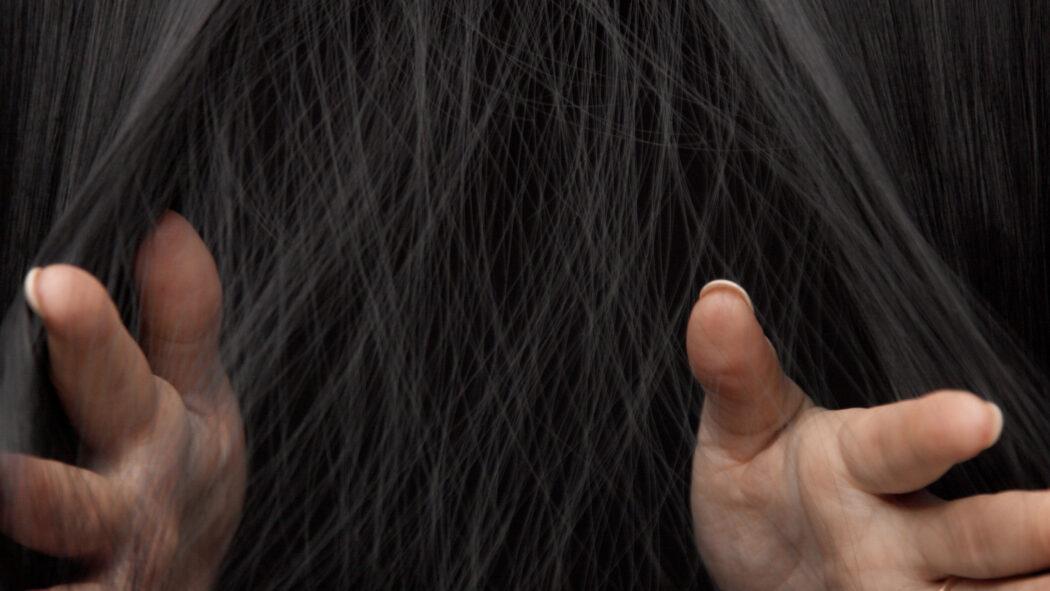 objawy łysienia telogenowego