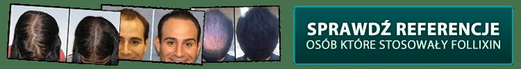 efekty przed i po