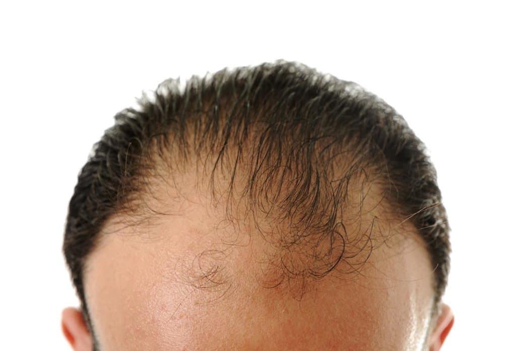 Follixin na wypadanie włosów u mężczyzn